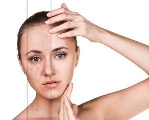 Akne: homöopathische Behandlung